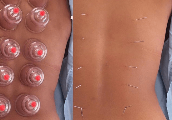 Introductory Workshop: Gua Sha, Cupping & Acupuncture